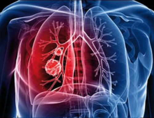 L'inquinamento atmosferico da particolato causa il cancro ai polmoni